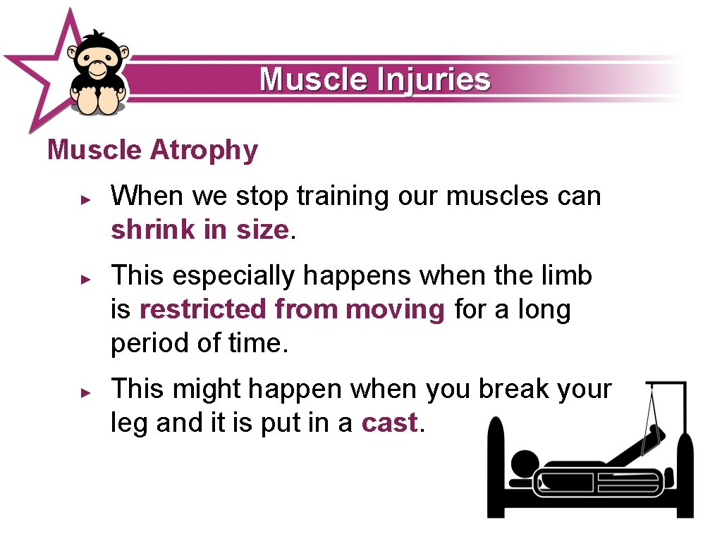Muscle Injuries Muscle Atrophy ► ► ► When we stop training our muscles can
