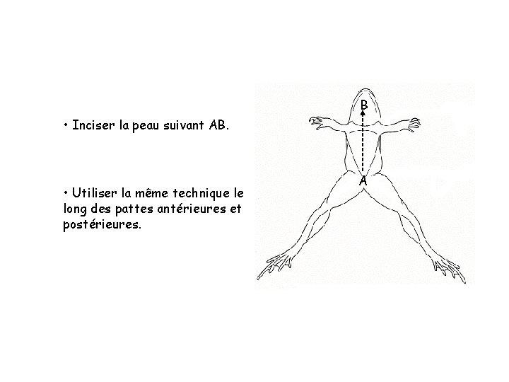 B • Inciser la peau suivant AB. • Utiliser la même technique le long