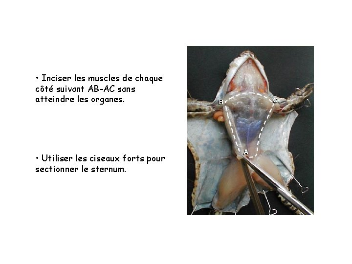 • Inciser les muscles de chaque côté suivant AB-AC sans atteindre les organes.