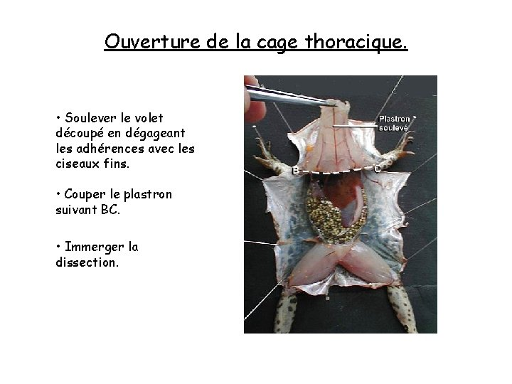 Ouverture de la cage thoracique. • Soulever le volet découpé en dégageant les adhérences