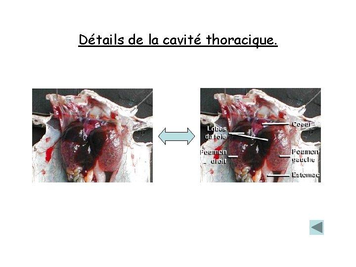 Détails de la cavité thoracique.