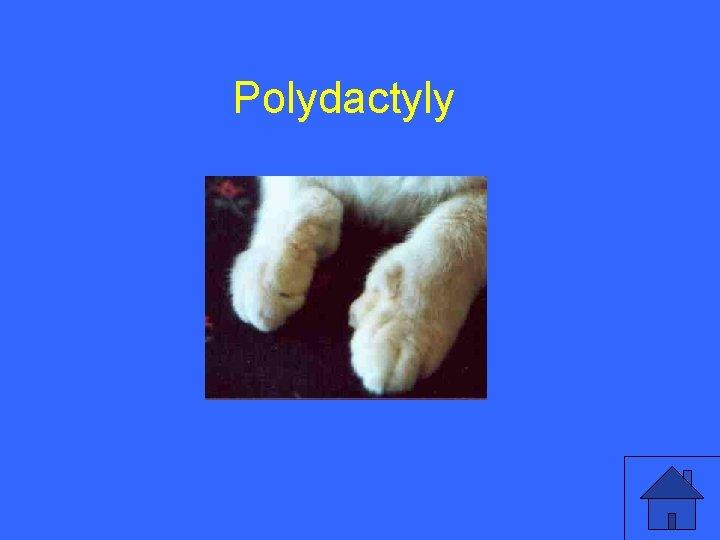 V 15 a Polydactyly 47