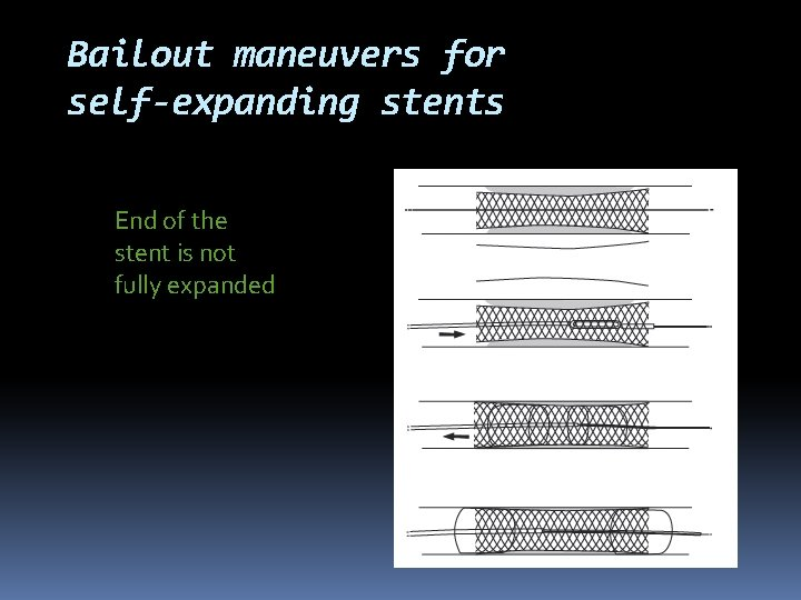 Bailout maneuvers for self-expanding stents End of the stent is not fully expanded