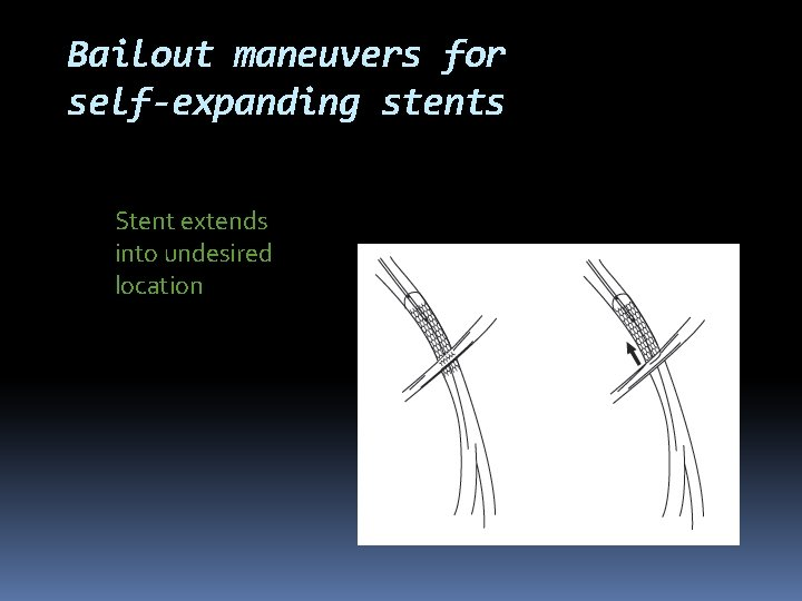 Bailout maneuvers for self-expanding stents Stent extends into undesired location