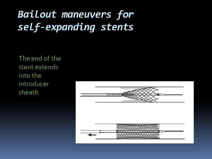 Bailout maneuvers for self-expanding stents The end of the stent extends into the introducer