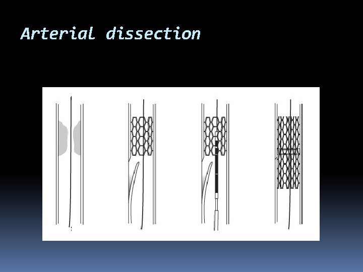 Arterial dissection