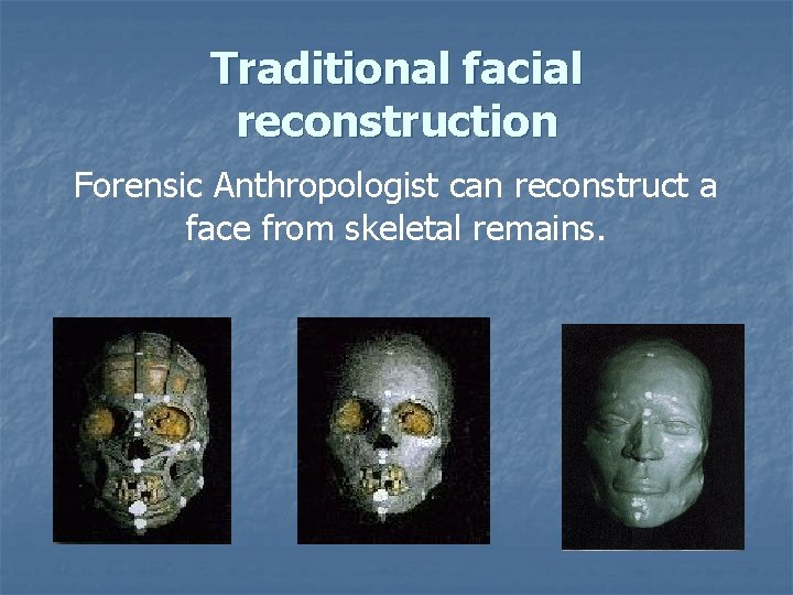 Traditional facial reconstruction Forensic Anthropologist can reconstruct a face from skeletal remains.