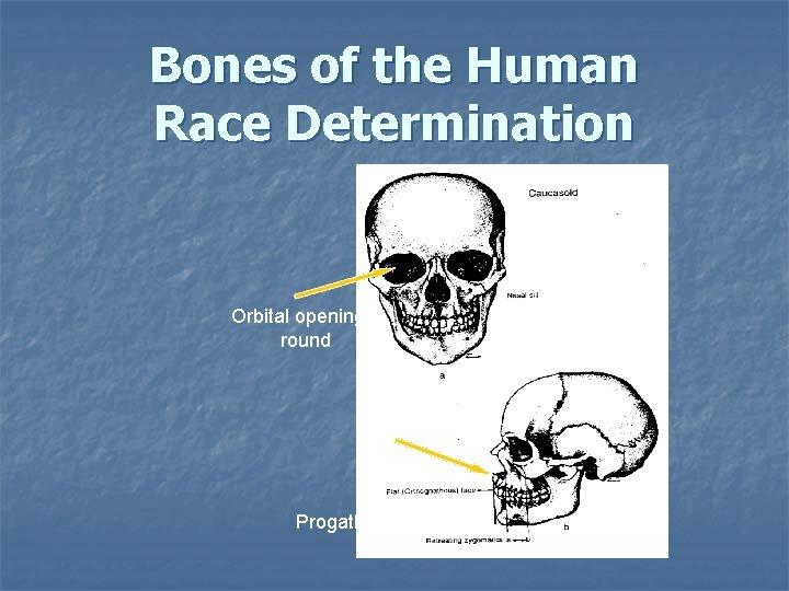 Bones of the Human Race Determination Orbital openings: round Nasal spine: Prominent Progathism: straight