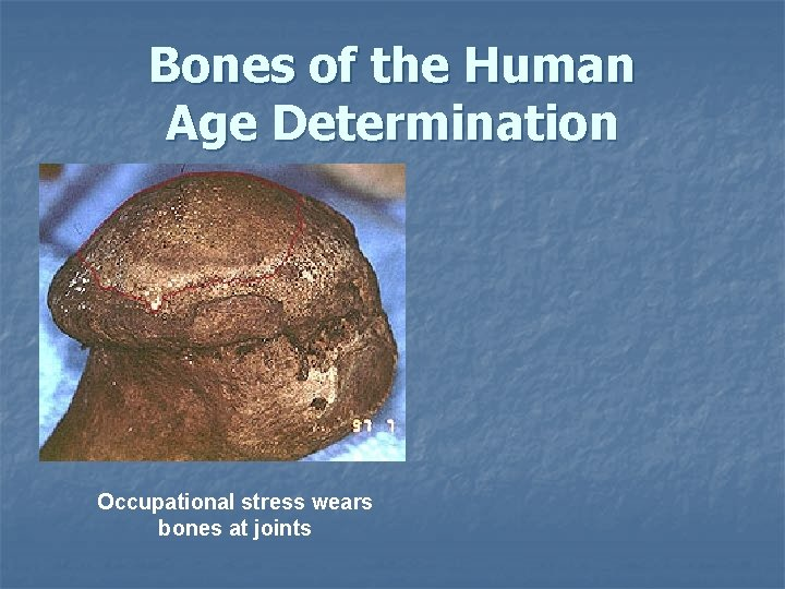 Bones of the Human Age Determination Occupational stress wears bones at joints