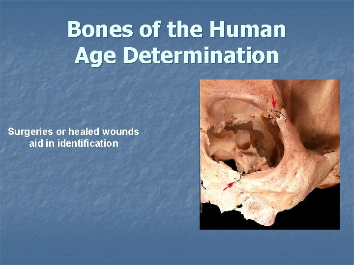 Bones of the Human Age Determination Surgeries or healed wounds aid in identification