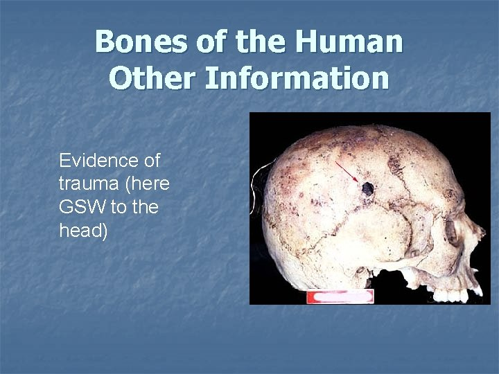 Bones of the Human Other Information Evidence of trauma (here GSW to the head)
