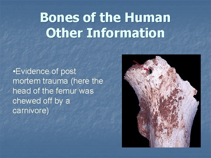 Bones of the Human Other Information • Evidence of post mortem trauma (here the