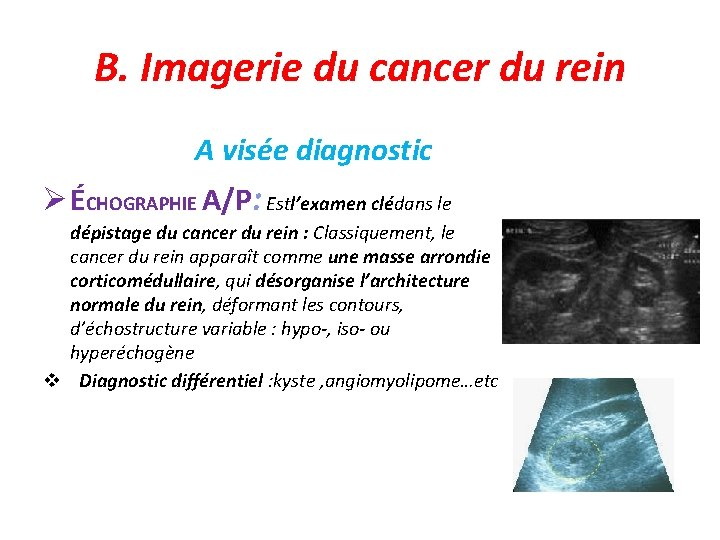 B. Imagerie du cancer du rein A visée diagnostic ÉCHOGRAPHIE A/P: Estl'examen clédans le