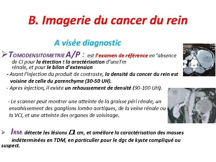 B. Imagerie du cancer du rein A visée diagnostic TOMODENSITOMETRIE A/P : est l'examen
