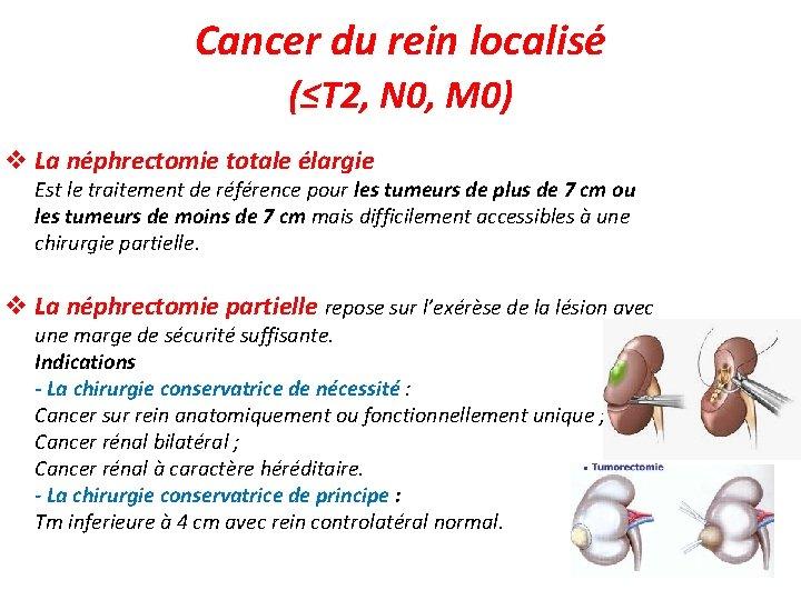 Cancer du rein localisé (≤T 2, N 0, M 0) v La néphrectomie totale