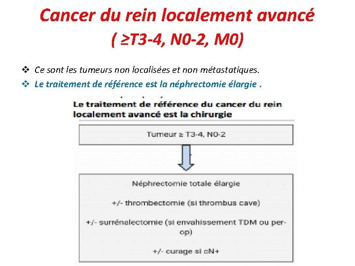 Cancer du rein localement avancé ( ≥T 3 -4, N 0 -2, M 0)