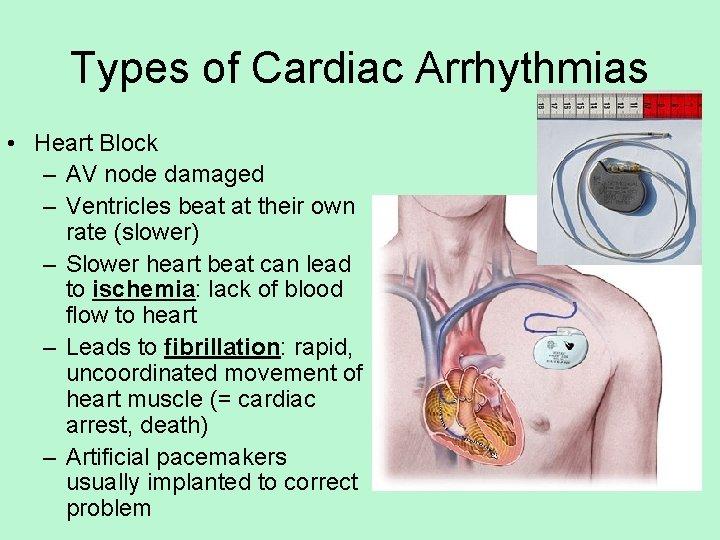 Types of Cardiac Arrhythmias • Heart Block – AV node damaged – Ventricles beat