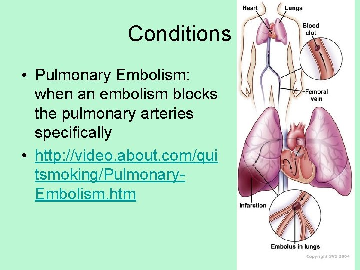 Conditions • Pulmonary Embolism: when an embolism blocks the pulmonary arteries specifically • http: