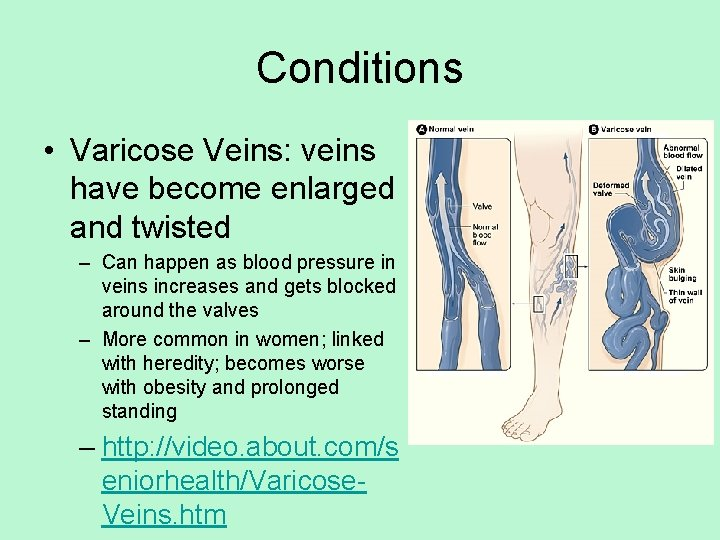 Conditions • Varicose Veins: veins have become enlarged and twisted – Can happen as