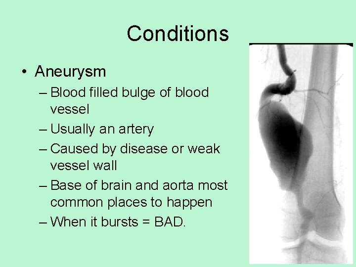 Conditions • Aneurysm – Blood filled bulge of blood vessel – Usually an artery