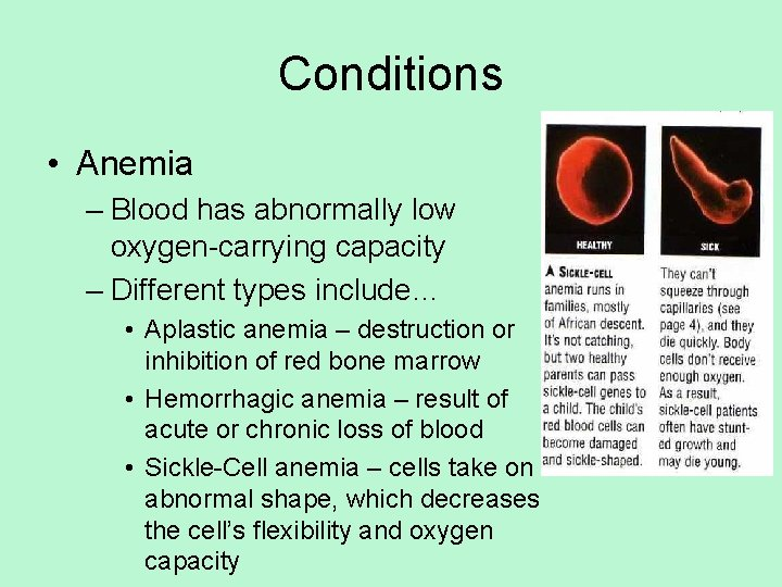 Conditions • Anemia – Blood has abnormally low oxygen-carrying capacity – Different types include…