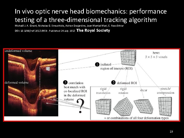 In vivo optic nerve head biomechanics: performance testing of a three-dimensional tracking algorithm Michaël