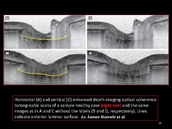 Horizontal (A) and vertical (C) enhanced depth imaging optical coherence tomographic scans of a