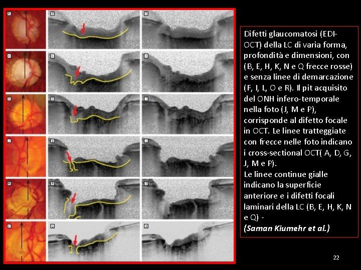 Difetti glaucomatosi (EDIOCT) della LC di varia forma, profondità e dimensioni, con (B, E,