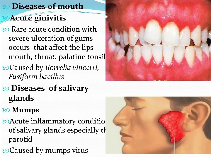 Diseases of mouth Acute ginivitis Rare acute condition with severe ulceration of gums
