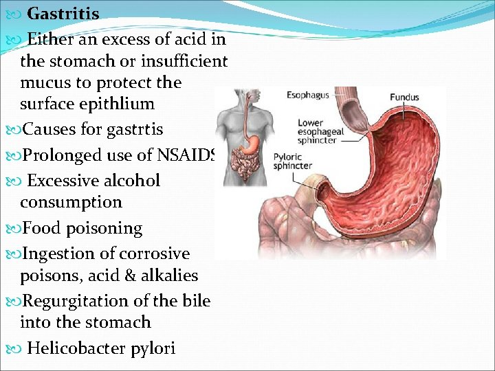 Gastritis Either an excess of acid in the stomach or insufficient mucus to
