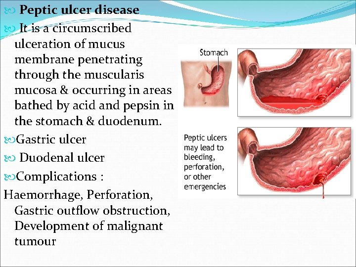 Peptic ulcer disease It is a circumscribed ulceration of mucus membrane penetrating through