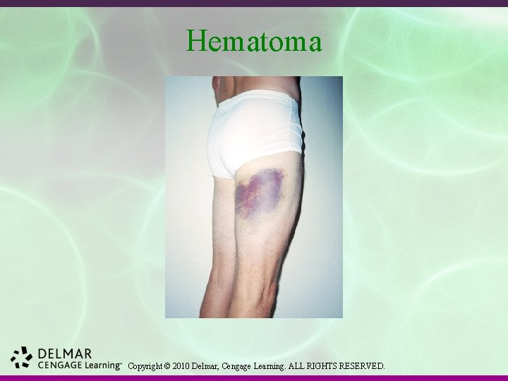 Hematoma Copyright © 2010 Delmar, Cengage Learning. ALL RIGHTS RESERVED.