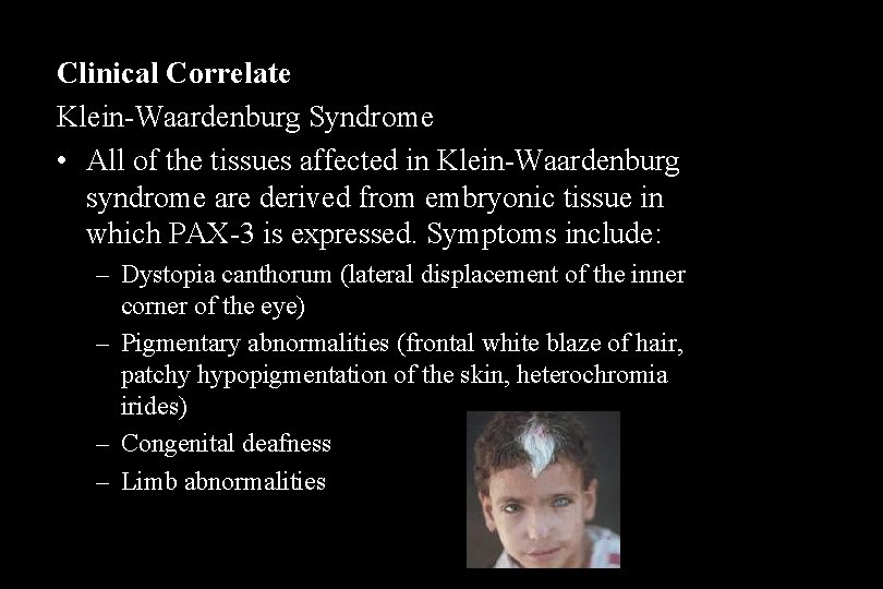 Clinical Correlate Klein-Waardenburg Syndrome • All of the tissues affected in Klein-Waardenburg syndrome are