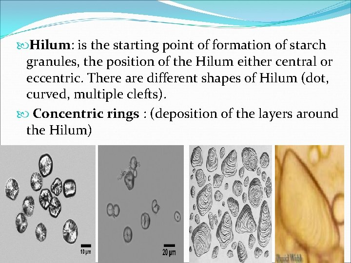 Hilum: is the starting point of formation of starch granules, the position of