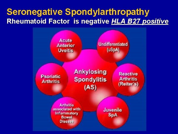 Spondilita anchilozanta | Bioclinica