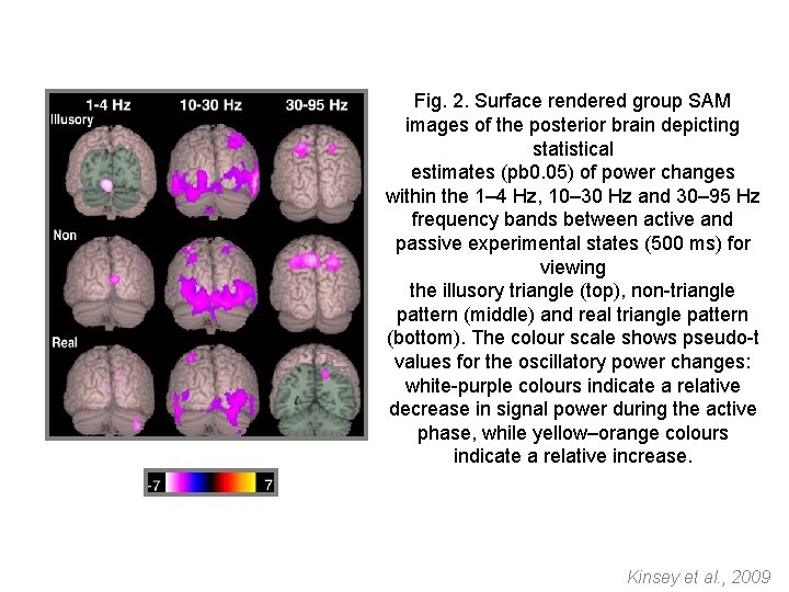 Fig. 2. Surface rendered group SAM images of the posterior brain depicting statistical estimates