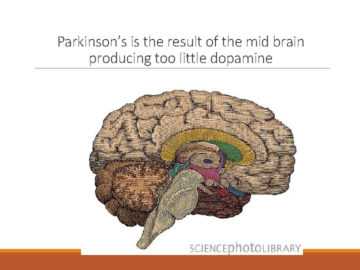 Parkinson's is the result of the mid brain producing too little dopamine