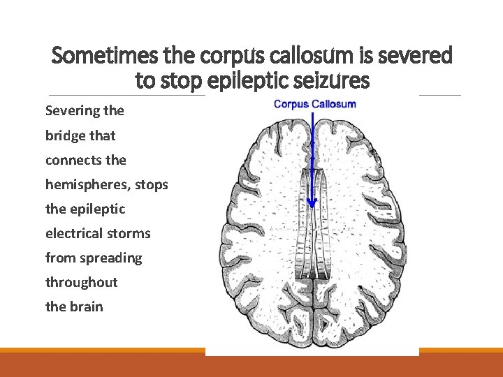 Sometimes the corpus callosum is severed to stop epileptic seizures Severing the bridge that
