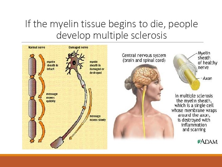 If the myelin tissue begins to die, people develop multiple sclerosis
