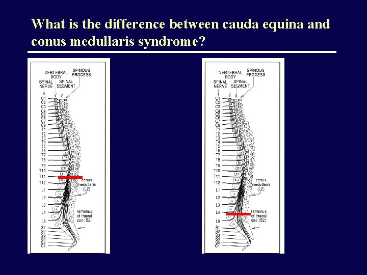 What is the difference between cauda equina and conus medullaris syndrome?