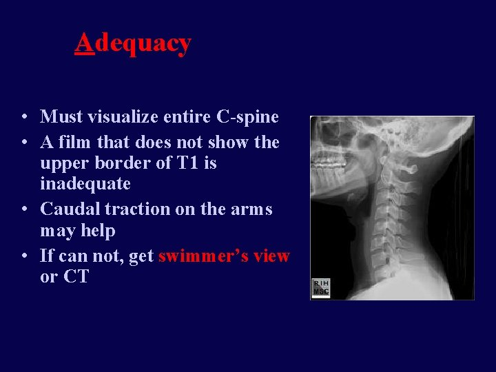 Adequacy • Must visualize entire C-spine • A film that does not show the