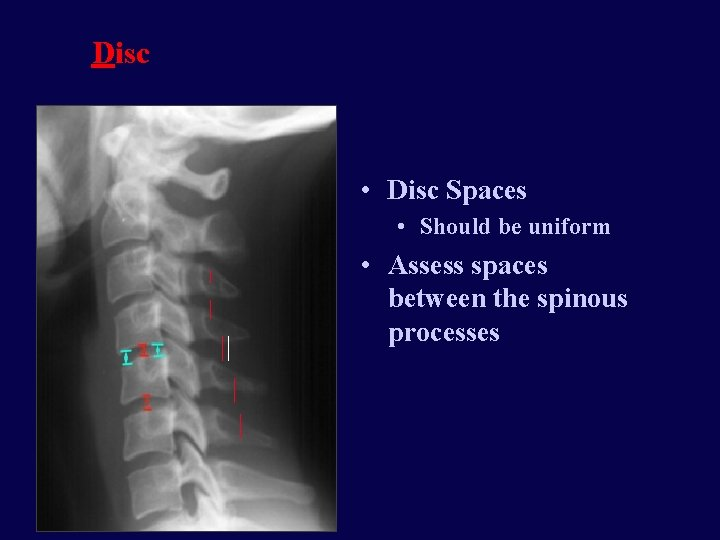 Disc • Disc Spaces • Should be uniform • Assess spaces between the spinous