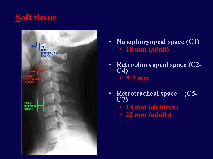 Soft tissue • Nasopharyngeal space (C 1) • 10 mm (adult) • Retropharyngeal space