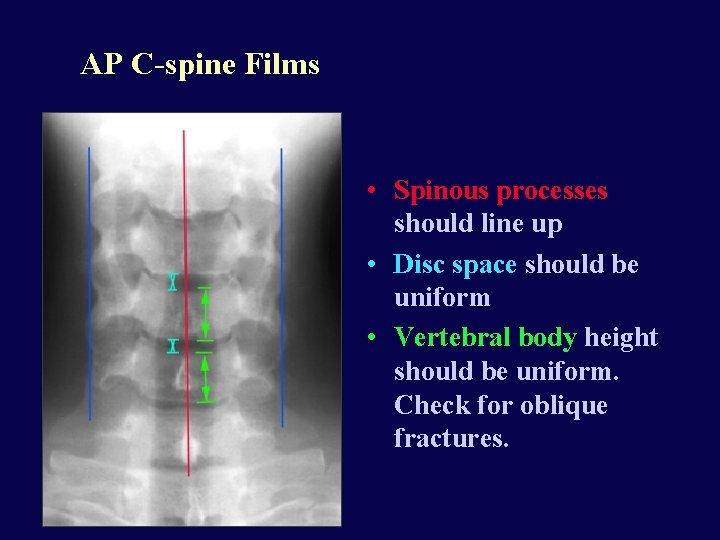 AP C-spine Films • Spinous processes should line up • Disc space should be