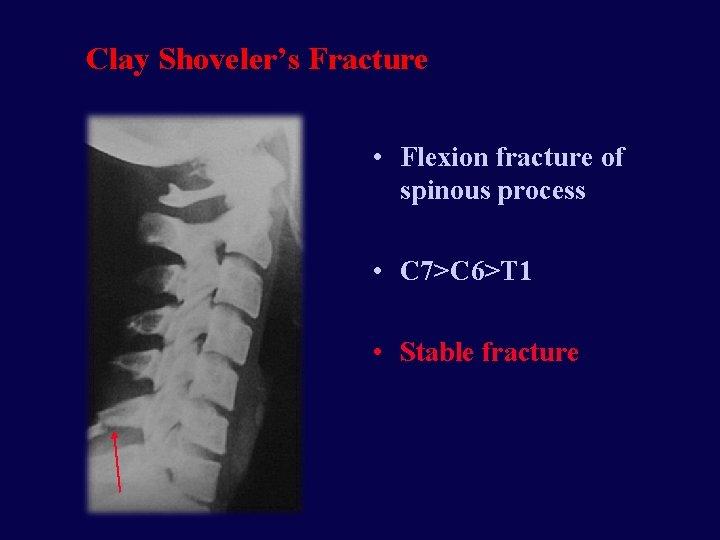 Clay Shoveler's Fracture • Flexion fracture of spinous process • C 7>C 6>T 1