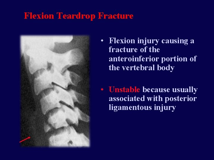 Flexion Teardrop Fracture • Flexion injury causing a fracture of the anteroinferior portion of