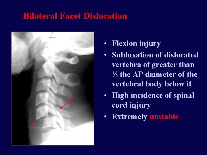 Bilateral Facet Dislocation • Flexion injury • Subluxation of dislocated vertebra of greater than