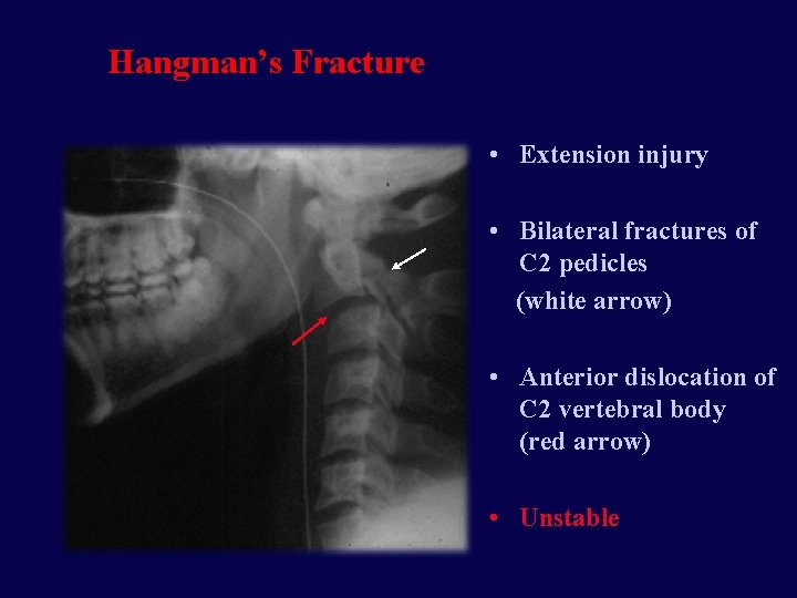 Hangman's Fracture • Extension injury • Bilateral fractures of C 2 pedicles (white arrow)