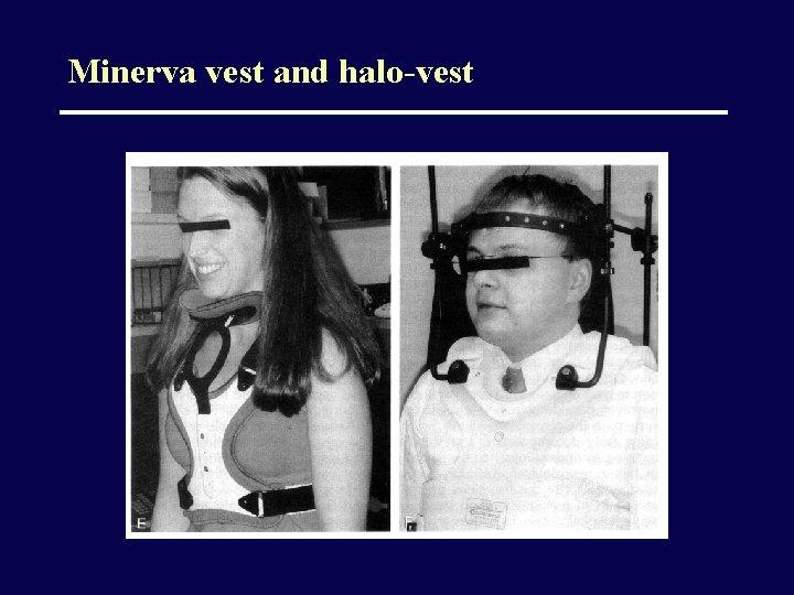 Minerva vest and halo-vest