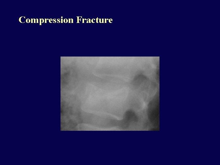 Compression Fracture